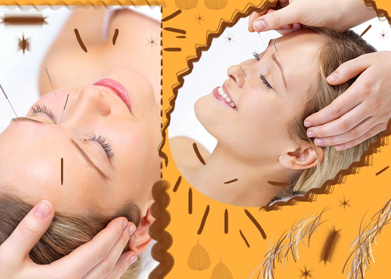 What Is Cosmetic Acupuncture? Facial Acupuncture Benefits, Costs